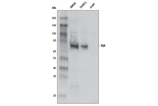 Polyclonal Antibody - Syk Antibody - Western Blotting, UniProt ID P43405, Entrez ID 6850 #2712 - Immunology and Inflammation