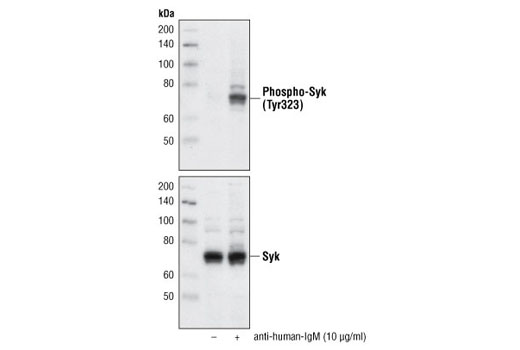 Western blot analysis of extracts from Ramos cells, untreated or treated with anti-human-IgM (10 µg/ml), using Phospho-Syk (Tyr323) Antibody #2715 (upper) or Syk Antibody #2712 (lower).