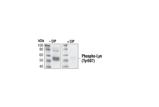 Western blot analysis of extracts from Ramos cells treated with anti-IgM antibody (12 µg/ml for 2 minutes), using Phospho-Lyn (Tyr507) Antibody. The phospho-specificity of the antibody was characterized by treating the membrane without or with calf intestinal alkaline phosphatase (CIP) after western transfer.