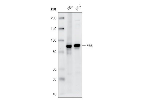 Western blot analysis of HEL and UT-7 cell lysates, using Fes Antibody.