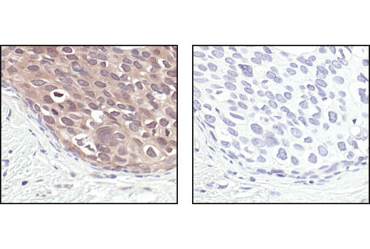 Immunohistochemical analysis of paraffin-embedded human breast carcinoma, using NEDD8 Antibody in the presence of control peptide (left) or Nedd8 Blocking Peptide #1048 (right).