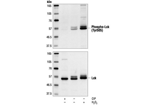Western blot analysis of extracts from Jurkat cells (starved for 16 hours) treated with calf intestinal alkaline phosphatase (CIP) or H2O2 (2 mM), using Phospho-Lck (Tyr505) Antibody (upper) or control Lck Antibody #2752 (lower).
