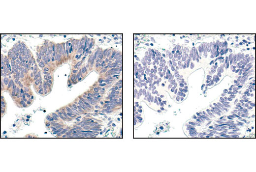 Immunohistochemical analysis of paraffin-embedded human colon carcinoma, using Bcl-xL (54H6) Rabbit mAb in the presence of control peptide (left) or Bcl-xL Blocking Peptide #1225 (right).