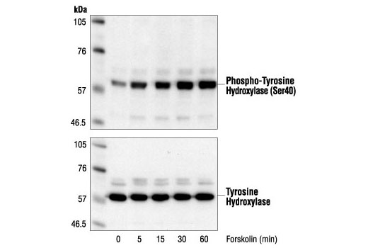 Polyclonal Antibody Catecholamine Biosynthetic Process