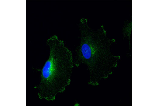 Image 9: Notch Isoform Antibody Sampler Kit