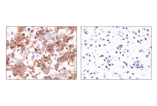 Image 15: Notch Isoform Antibody Sampler Kit