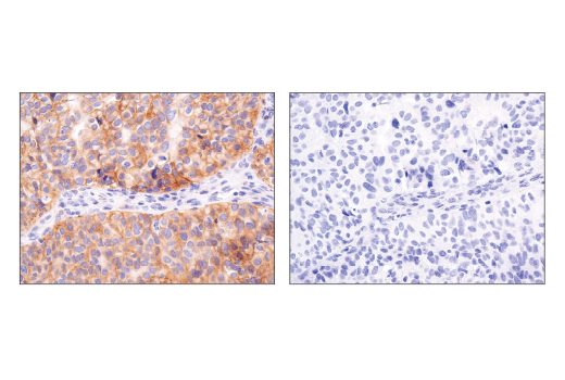 Image 20: Notch Isoform Antibody Sampler Kit