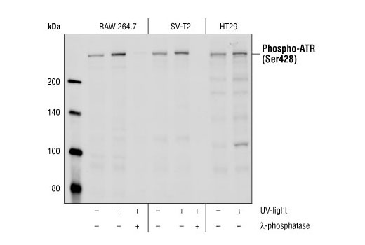 Western blot analysis of Raw264.7, SV-T2 and HT-29 cells that were untreated or UV-treated (50 mJ, 30 min), using Phospho-ATR (Ser428) Antibody. Lambda phosphatase NEB #P0753 (10,000 Units/ml, 1hr) was used to demonstrate the phospho-specificity of the antibody.