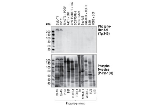 Western blot analysis of extracts from cells expressing various activated tyrosine kinase proteins, using Phospho-c-Abl (Tyr245) (73E5) Rabbit mAb (upper) or Phospho-Tyrosine mAb (P-Tyr-100) #9411 (lower).