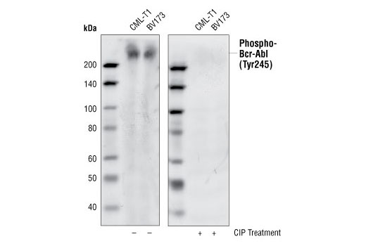 Western blot analysis of CML-T1 and BV173 cell lysates, using Phospho-c-Abl (Tyr245) (73E5) Rabbit mAb. The phospho-specificity of the antibody was verified by treating the membrane with (+) (right) or without (-) (left) calf intestinal phosphatase (CIP) after Western transfer.