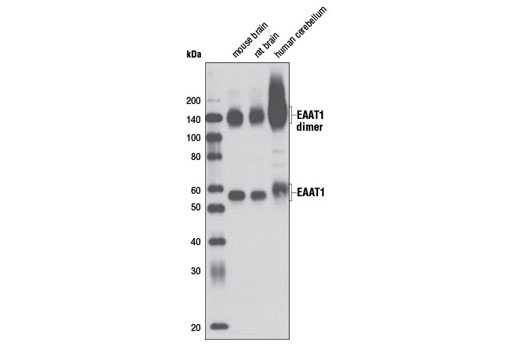 Western blot analysis of extracts of tissue from mouse brain, rat brain, and human cerebellum using EAAT1 (D44E2) XP<sup>®</sup> Rabbit mAb.