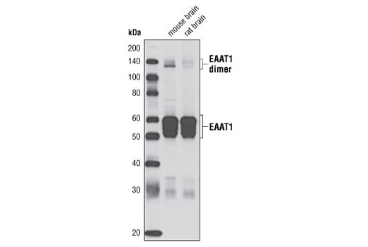 Western blot analysis of extracts from mouse and rat brain using EAAT1 (D20D5) Rabbit mAb.