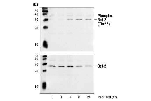 Polyclonal Antibody Western Blotting Response to Radiation
