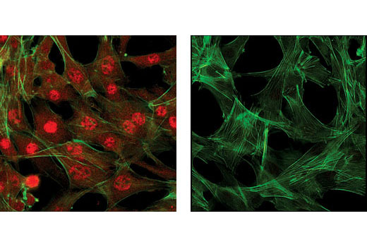Confocal immunofluorescence images of C2C12 cells showing nuclear and cytoplasmic localization with Akt (5G3) Mouse mAb (left, red) compared to an isotype control (right). Actin filaments have been labeled with fluorescein phalloidin.