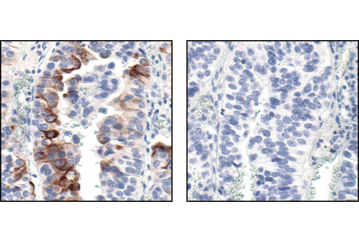 Immunohistochemical analysis of paraffin-embedded human transitional epithelial carcinoma of the bladder using Phospho-mTOR (Ser2448) (49F9) Rabbit mAb (IHC Specific) in the presence of control peptide (left) or Phospho-mTOR (Ser 2448) Blocking Peptide #1230 (right).