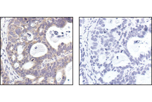 Immunohistochemical analysis of paraffin-embedded human lung carcinoma, using mTOR (7C10) Rabbit mAb in the presence of control peptide (left) or mTOR Blocking Peptide #1072 (right).