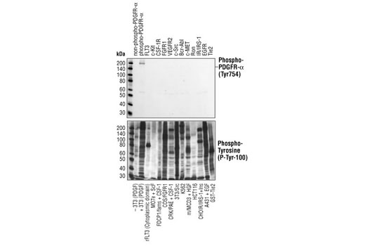 Phospho-PDGF Receptor α (Tyr754) (23B2) Rabbit mAb specifically binds to tyrosine phosphorylated PDGF receptor α, but not other phosphorylated tyrosine kinases. Western blot analysis of of extracts from cells expressing different activated tyrosine kinase proteins, using Phospho-PDGF Receptor α (Tyr754) (23B2) Rabbit mAb (upper) or Phospho-Tyrosine Mouse mAb (P-Tyr-100) #9411 (lower).