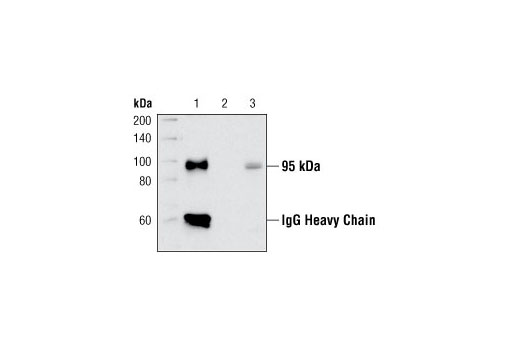 Image 1: Insulin/IGF-1 Signaling Pathway Antibody Sampler Kit