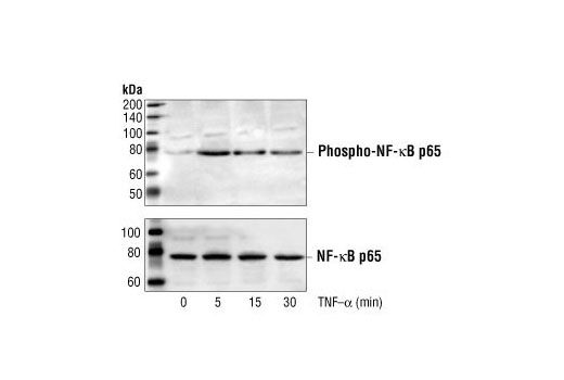 Polyclonal Antibody Positive Regulation of interleukin-12 Biosynthetic Process