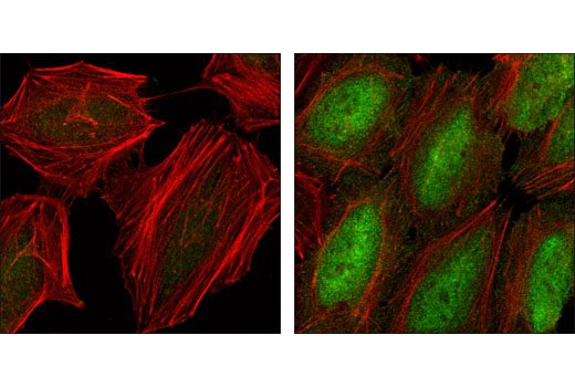 Confocal immunofluorescent analysis of HeLa cells, serum starved (left) or TNF-α treated (#8902 at 20 ng/ml for 20 min, right), using Phospho-NF-κB p65 (Ser536) (93H1) Rabbit mAb (green). Actin filaments have been labeled with Alexa Fluor® phalloidin 555 (red).