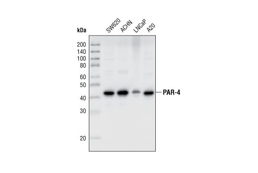 Western blot analysis of extracts from SW620, ACHN, LNCaP and A20 cell lines, using PAR-4 Antibody.