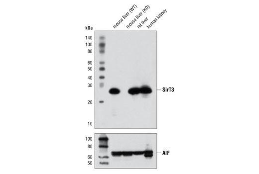 Monoclonal Antibody - SirT3 (D22A3) Rabbit mAb - Immunoprecipitation, Western Blotting, UniProt ID Q9NTG7, Entrez ID 23410 #5490, Chromatin Regulation / Acetylation