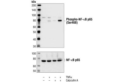 Western blot analysis of extracts from HeLa cells treated for 5 minutes with TNF-alpha #2169 (20 ng/ml), Calyculin A #9902 (50 nM), or both compounds, using Phospho-NF-kappaB p65 (Ser468) Antibody (top) or NF-kappaB p65 Antibody #3034 (bottom).