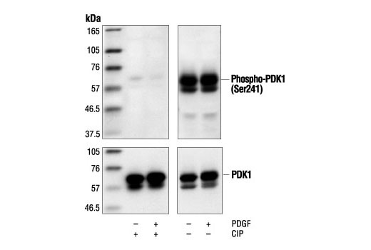 Western blot analysis of extracts from NIH/3T3 cells (starved for 16 hours) treated with PDGF (50 ng/ml), using Phospho-PDK1 (Ser241) Antibody (upper) or control PDK1 antibody (lower). The phospho-specificity of the antibody was confirmed by treating the membrane with calf intestinal alkaline phosphatase (CIP) after Western transfer.