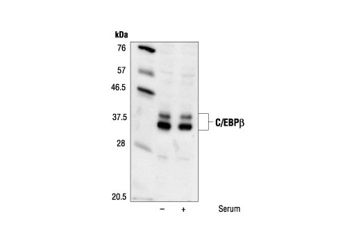 Western blot analysis of extracts from untreated or serum treated PC12 cells, using C/EBPbeta Antibody.