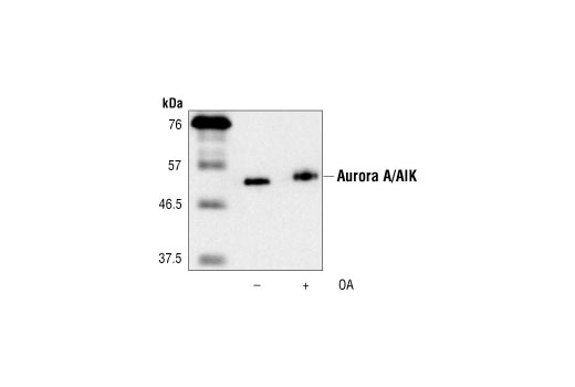 Western blot analysis of purified mouse His-Aurora A/AIK expressed in Sf9 insect cells, untreated or treated with okadaic acid 1 hour prior to harvest, using Aurora A/AIK Antibody.