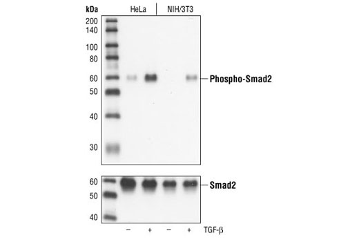 Western blot analysis of extracts from untreated or TGF-beta treated HeLa and NIH/3T3 cells, using Phospho-Smad2 (Ser465/467) (138D4) Rabbit mAb (upper), or Smad2 Antibody #3102 (lower).