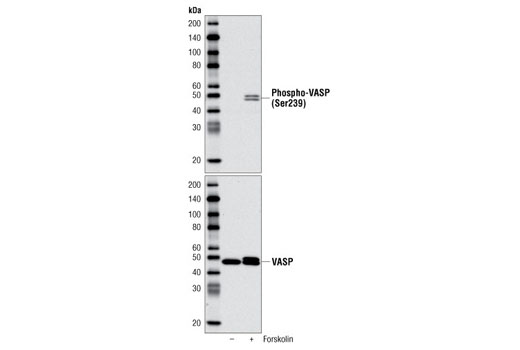 Western blot analysis of extracts from A-431 cells, untreated (-) or treated with Forskolin #3828 (+), using Phospho-VASP (Ser239) Antibody (upper) and VASP (9A2) Rabbit mAb #3132 (lower).