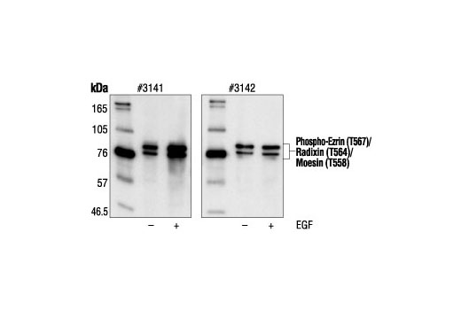 Western blot analysis of extracts from A431 cells, untreated or EGF-treated, using Phospho-Ezrin (Thr567)/Radixin (Thr564)/Moesin (Thr558) Antibody (left) or Ezrin/Radixin/Moesin Antibody #3142 (right).