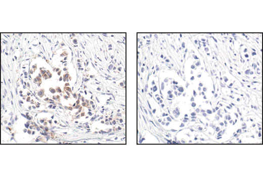 Immunohistochemical analysis of paraffin-embedded human breast carcinoma, using Ezrin Antibody in the presence of control peptide (left) or antigen-specific peptide (right).