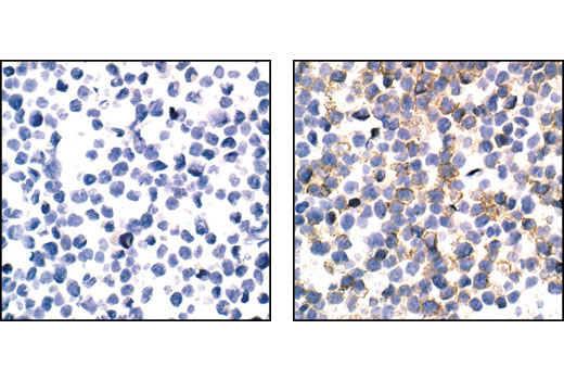 Immunohistochemical analysis of paraffin-embedded FDCP1/fms cells, untreated (left) or mCSF-treated (right), using Phospho-M-CSF Receptor (Tyr723) (49C10) Rabbit mAb.