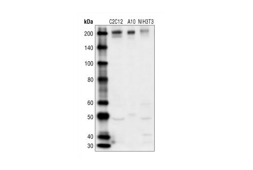 Polyclonal Antibody Smooth Muscle Cell Migration