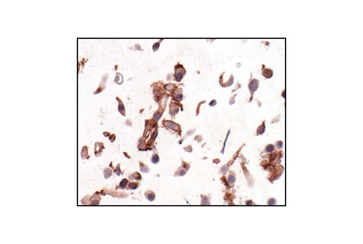 Immunohistochemical analysis of paraffin-embedded U-87MG cells, showing membrane localization, using PDGF Receptor β (28E1) Rabbit mAb.