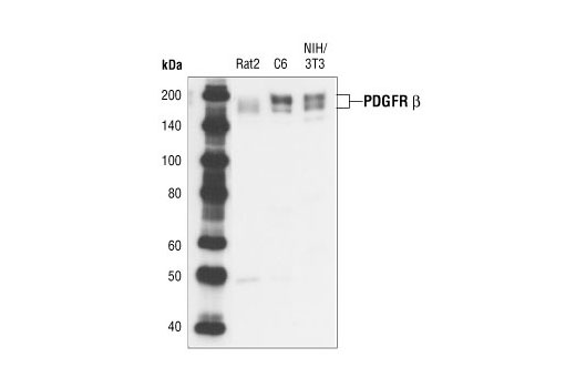 Western blot analysis of extracts from various cell lines, using PDGF Receptor β (28E1) Rabbit mAb.