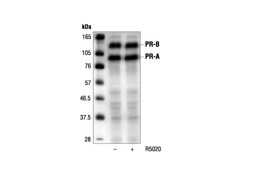 Western blot analysis of extracts from T47D cells, untreated or stimulated with 100 nM promegestone (R5020) for 1 hour, using Progesterone Receptor (6A1) Mouse mAb.