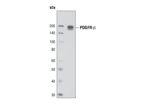 Western blot analysis of NIH-3T3 cell lysates, using PDGF Receptor beta (2B3) Mouse mAb.