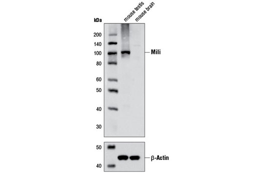 Image 11: RNAi Machinery Antibody Sampler Kit
