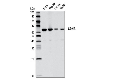 Rat Succinate Dehydrogenase Ubiquinone Activity