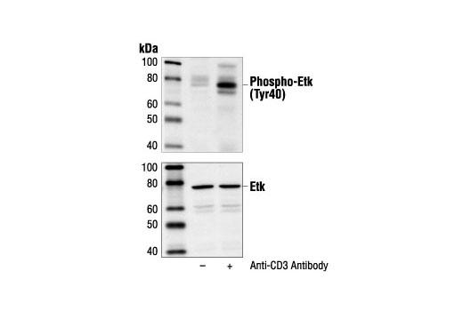 Polyclonal Antibody - Phospho-Etk (Tyr40) Antibody - Immunoprecipitation, Western Blotting, UniProt ID P51813, Entrez ID 660 #3211 - Rtk