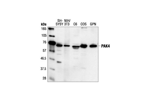 Western blot analysis of extracts from SH-SY5Y, NIH/3T3, C6 and COS cells and guinea pig neutrophils, using PAK4 Antibody.