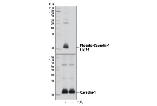 Western blot analysis of extracts from HeLa cells, untreated (-) or H<sub>2</sub>O<sub>2</sub>-treated (+), using Phospho-Caveolin-1 (Tyr14) Antibody (upper) and Caveolin-1 (D46G3) XP<sup>®</sup> Rabbit mAb #3267 (lower).