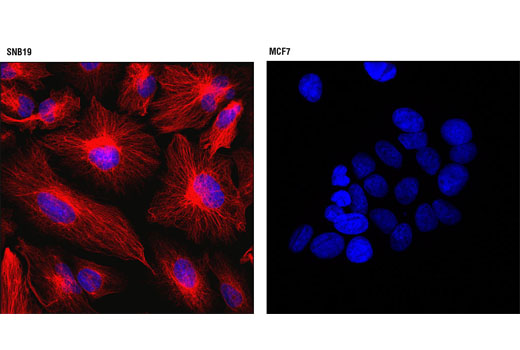 Confocal immunofluorescent analysis of SNB19 (left) or MCF7 (right) cells using Vimentin (D21H3) XP<sup>®</sup> Rabbit mAb (Alexa Fluor<sup>®</sup> 555 Conjugate) (red). Blue pseudocolor = DRAQ5<sup>®</sup> #4084 (fluorescent DNA dye).