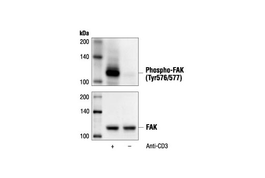 Western blot analysis of extracts from Jurkat cells, untreated or treated with anti-CD3 antibody (1 µg/ml for 10 minutes), using Phospho-FAK (Tyr576/577) Antibody (upper) or FAK antibody (lower).