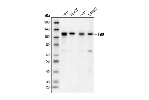 Western blot analysis of extracts from various cell lines, using FAK Antibody.