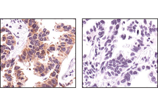 Immunohistochemical analysis of paraffin-embedded human lung carcinoma, using FAK Antibody in thre presence of control peptide (left) or antigen-specific peptide (right).