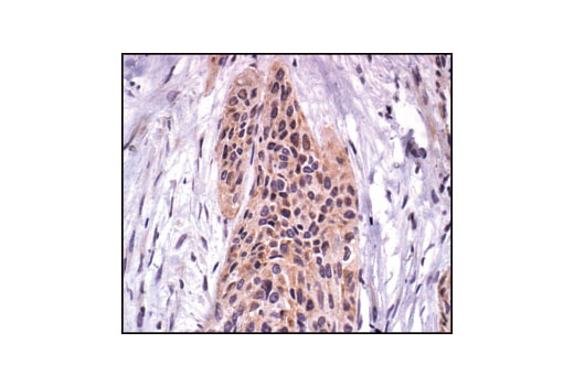 Immunohistochemical analysis of paraffin-embedded human breast carcinoma, using FAK Antibody.